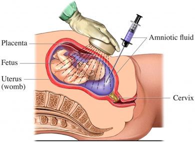 Genetic Amniocentesis